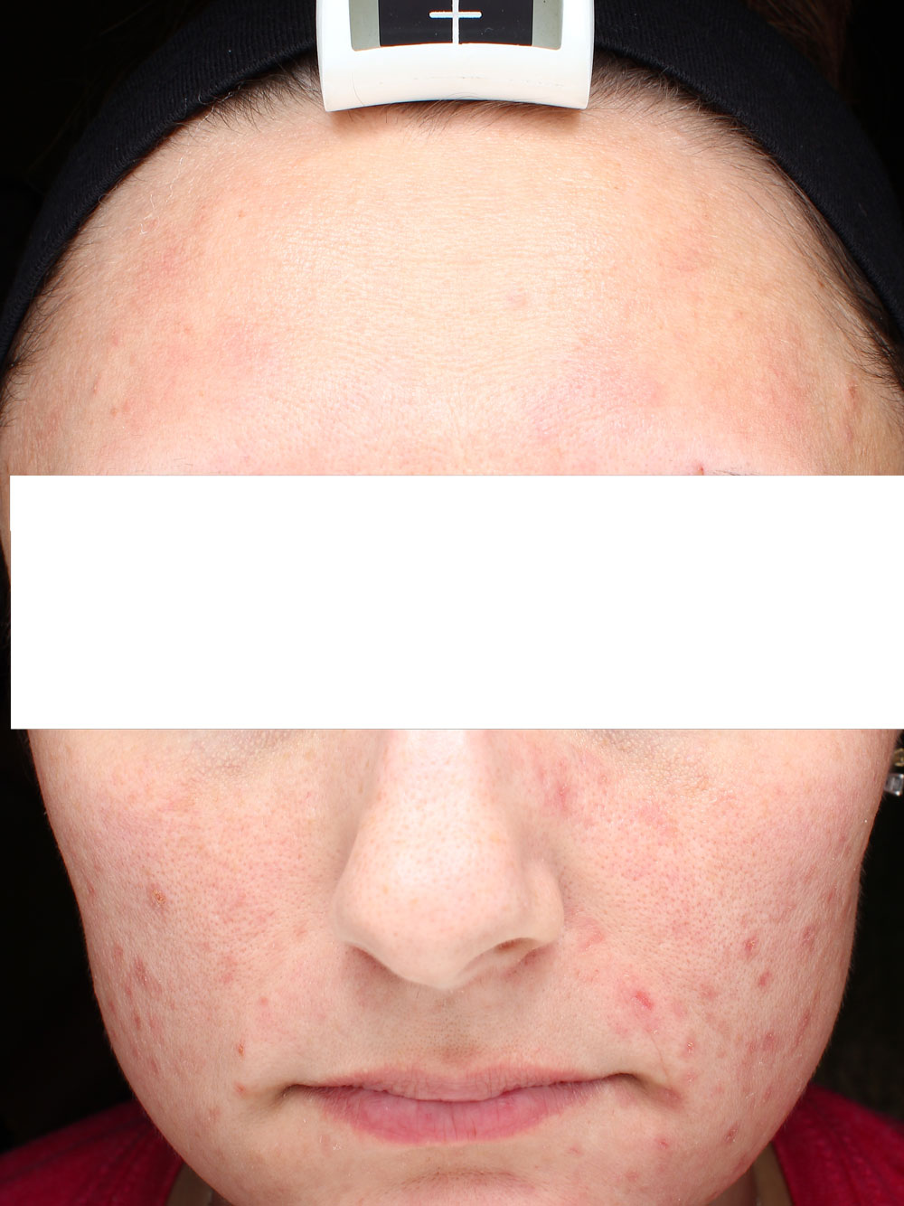 Acne before from treatment before and after procedure provided by Dr. Scott Hernberg of Tomorrow's Wellness Center, NJ's premier med spa.