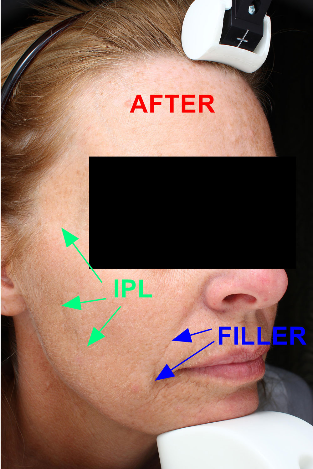 Face after from IPL and facial filler treatments before and after procedure provided by Dr. Scott Hernberg of Tomorrow's Wellness Center, NJ's premier med spa.