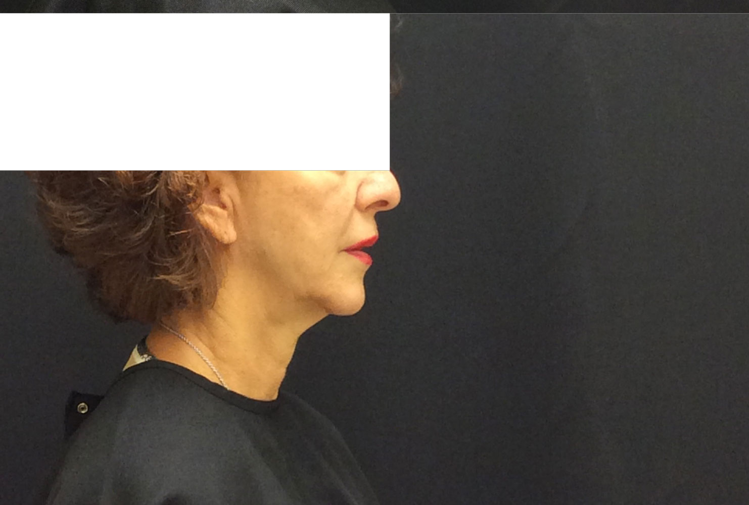 Neck after from Ultherapy before and after procedure provided by Dr. Scott Hernberg of Tomorrow's Wellness Center, NJ's premier med spa.