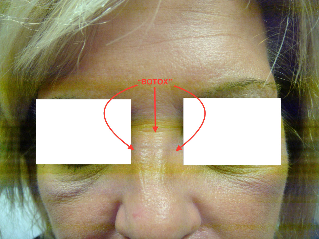 Woman's nose after from Botox treatment before and after procedure provided by Dr. Scott Hernberg of Tomorrow's Wellness Center, NJ's premier med spa.