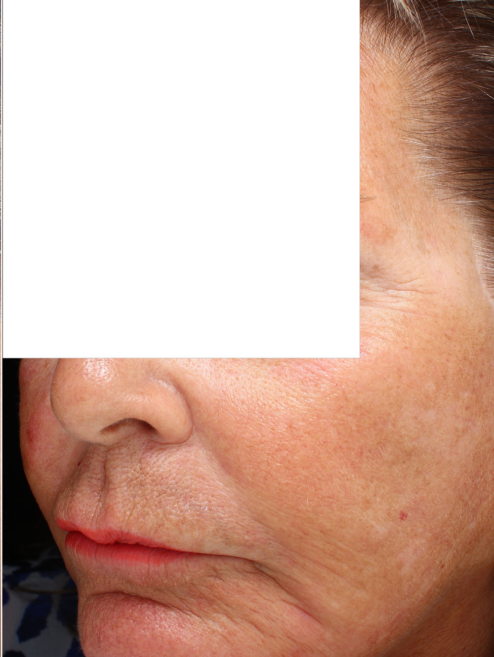 Woman's wrinkles after from Botox treatment before and after procedure provided by Dr. Scott Hernberg of Tomorrow's Wellness Center, NJ's premier med spa.