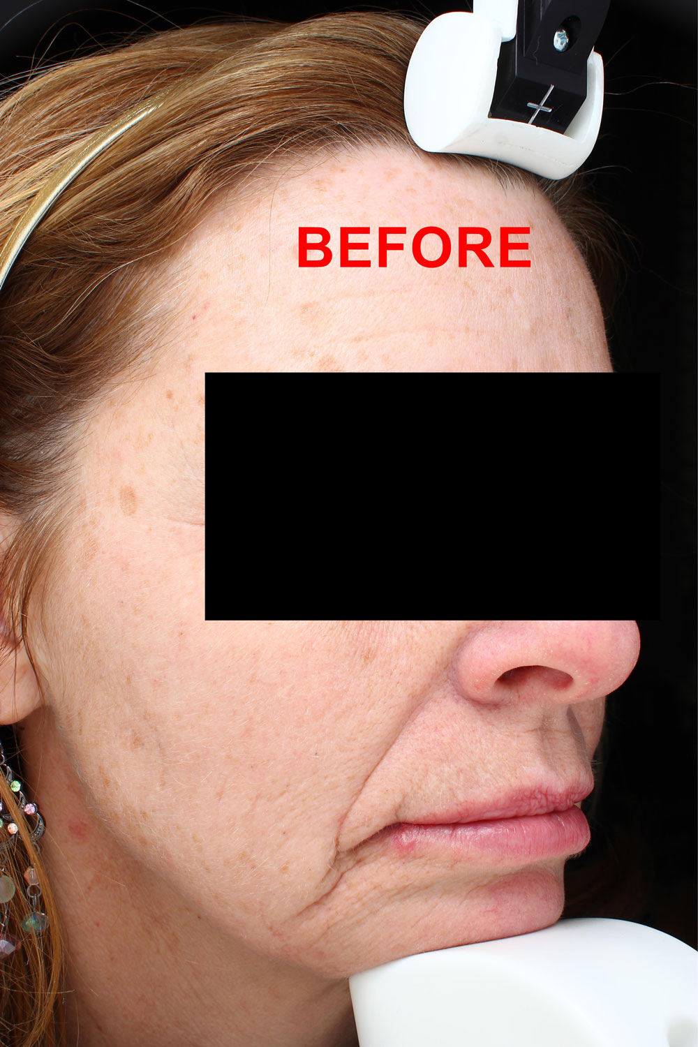 Face before from IPL and facial filler treatments before and after procedure provided by Dr. Scott Hernberg of Tomorrow's Wellness Center, NJ's premier med spa.
