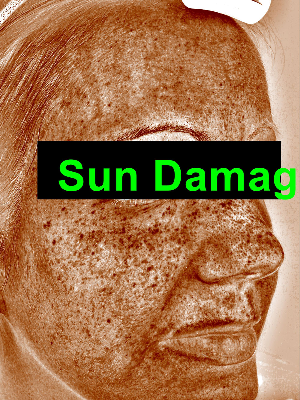 Sun damage before from IPL treatment before and after procedure provided by Dr. Scott Hernberg of Tomorrow's Wellness Center, NJ's premier med spa.