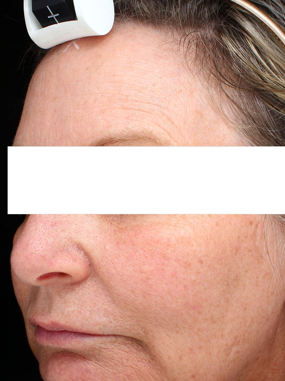 Marionette lines before from Ultherapy before and after procedure provided by Dr. Scott Hernberg of Tomorrow's Wellness Center, NJ's premier med spa.